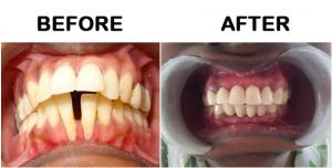 Orthodontic teeth alignment