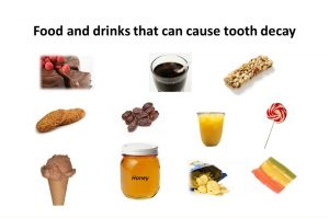 food causing tooth decay