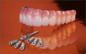 Arch in Dentures